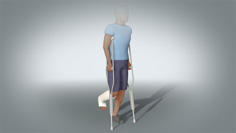 Using Crutches: Discharge Instructions