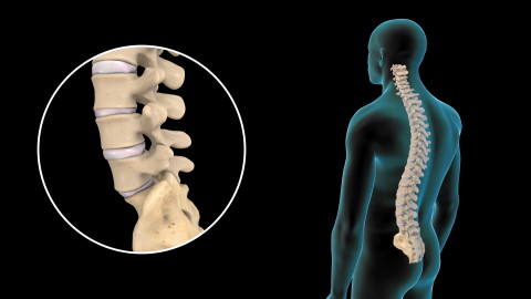 Lumbar Disc Injuries and Treatment